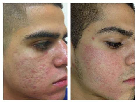 Best CO2 Laser Skin Resurfacing in Dallas at Advanced Skin