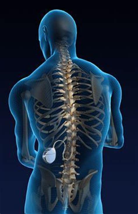 intrathecal pumps arizona pain specialists phoenix