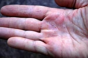 Как вылечить грибок ногтей малавита