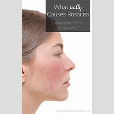 What Really Causes Rosacea And How To Overcome It Naturally  Back To The Book Nutrition