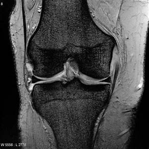 Medical Collateral Ligament Full Thickness Tear