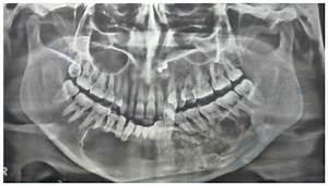 Full Text  Calcifying Cystic Odontogenic Tumor Associated