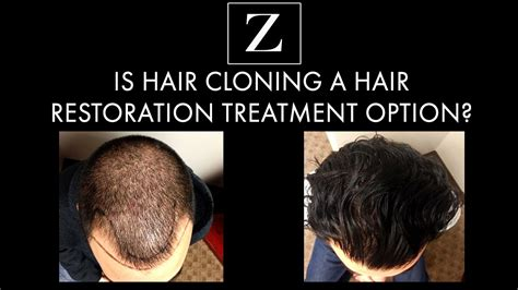 Hair Is by Is Hair Cloning An Option For Hair Restoration