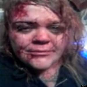 Susann Stacy Posts Bloody Selfie To Facebook After Attack ...