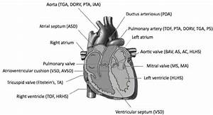 Congenital Heart Defects  Diagram Of Heart Illustrating