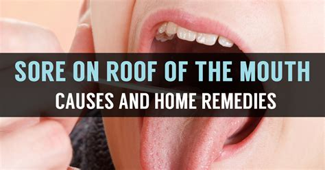 What Is Roof Of The Mouth Sore? Know Its Causes & Remedies Red Roof Inn Charleston Sc Mount Pleasant Metal Roofing At Lowes Snow Removal Copper Material Going Rate For Empire Claim Services Mystic New London Rubber Coating