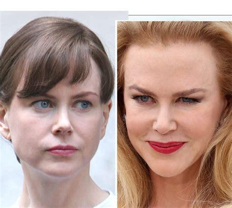 Nicole Kidman's Plastic Surgery — Doctors Speak About