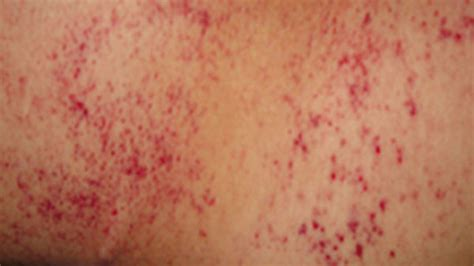 anemia rash  pictures  treatment