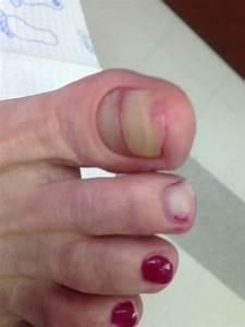 Найти лечение грибка ногтей
