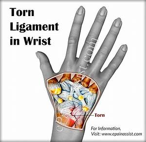 The 25  Best Torn Ligament Ideas On Pinterest