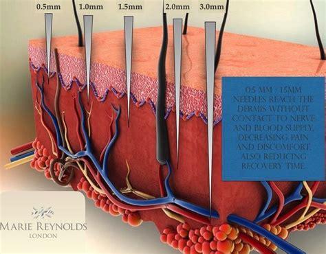 Micro needling | Skin needling, Anti aging skin care, Skin