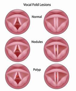 Vocal Cord Disorders - Fort Worth ENT & Sinus