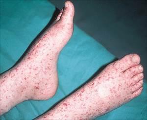 Kawasaki disease | JeffreySterlingMD.com