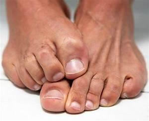 Йодинол может вылечить грибок на ногтях ног