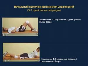 Препараты артроз тазобедренного сустава