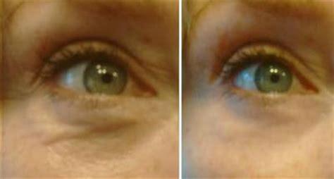 Deep Eye Sockets - How To Fill In Sunken Eyes?