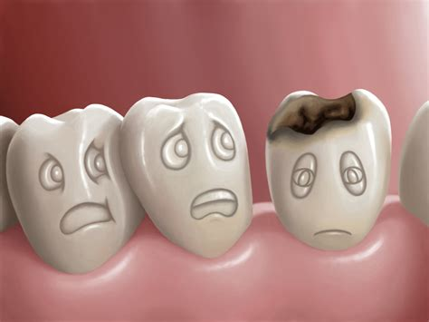 Why Candy Bad For Your Teeth