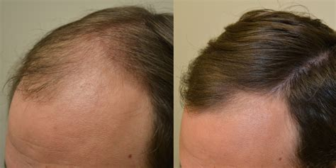 spironolactone hair loss before and propecia before and after photos dr rogers new orleans