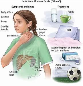 Infectious Mononucleosis Adolescent Medicine Jama