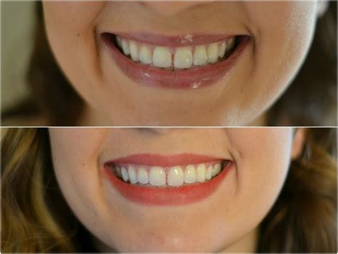 crest whitestrips supreme review crest 3d white strips before and after review by m