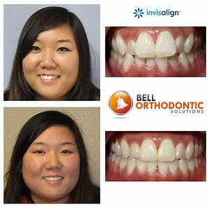 Invisalign® Before & After - Bell Orthodontic Solutions ...