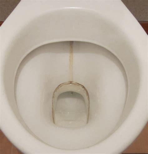 bowl renew toilet descaler gents toilet cleaner 4 pack special offermanufacturer