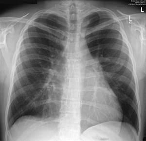 Haemopericardium Causing Cardiac Tamponade  A Late