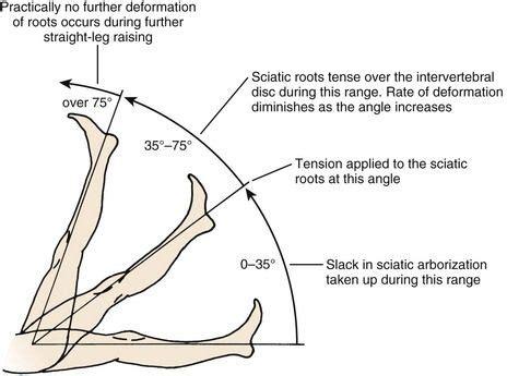 test lasegue image result for slr test musculoskeletal 건강