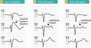 Brugada syndrome: ECG, clinical features and management ...