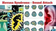 Havana syndrome   Sound attack   Tamil - YouTube
