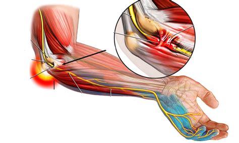 Resultado de imagen de nervio cubital