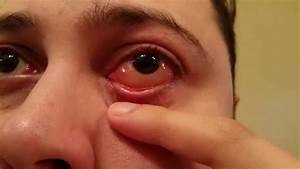 Eyeball Blister - Allergic Reaction
