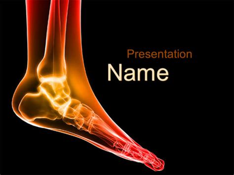 ankle radiography powerpoint template backgrounds