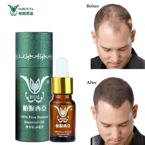 Online Buy Wholesale Anti Hair Loss Products From China