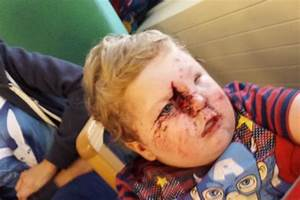 Family shocked as dog mauls toddler's face in horrific ...