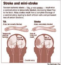 Cerebrovascular Accidents (Strokes) - Primum non nocere Stroke