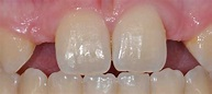 Resin Bonded Bridge for Lateral Incisor Replacement - Lee Ann Brady DMD