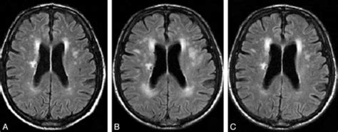 imaging findings  hepatic encephalopathy american