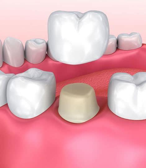 dental crowns  veneers  rivervale belmont burswood
