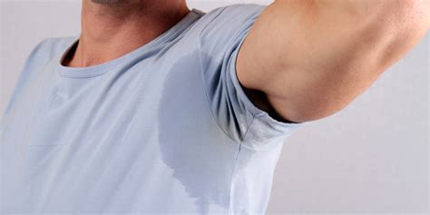 al das medical clinic hyperhidrosis