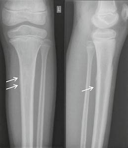 Radiologic Imaging Of Lower Leg Injuries