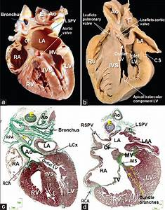 Anatomy Of The Normal Fetal Heart  The Basis For Understanding Fetal Echocardiography Picazo