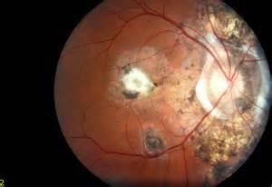 fundus photo fundus photo image gallery click on a picture to enlarge fundus photo