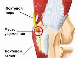 Физиотерапия при болях в локтевом суставе