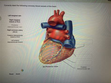 This is an online quiz called blood vessel labeling. Solved: Help Correctly Label The Following Coronary Blood ...   Chegg.com