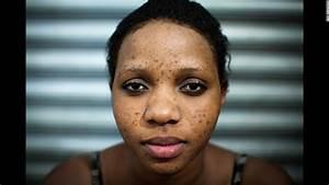 10 Harmful Side Effects Of Makeup  curejoycom