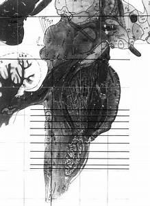 Sagittal View Of Brainstem Demonstrating Anatomical Slices