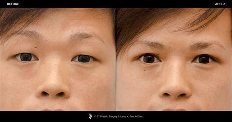 asian eyelid surgery p gallery p gallery