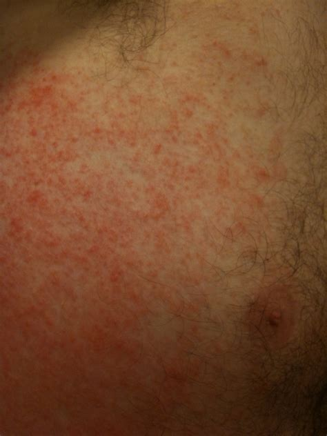 Viral Exanthem In Adults Briarelectricitycf
