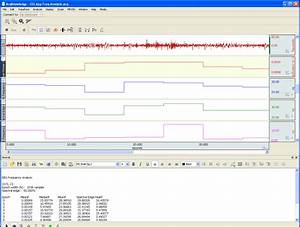 Eeg  Electroencephalography